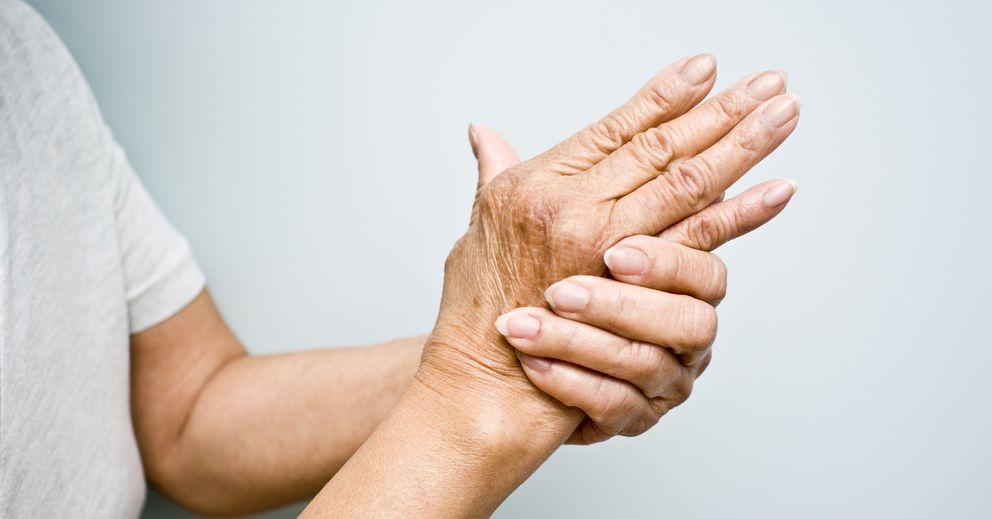 Foto: La artritis es una enfermedad común y devastadora. (iStock)