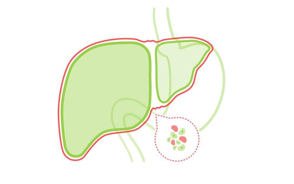Enfermedades: Hígado graso: causas, síntomas y remedios. Noticias de ...
