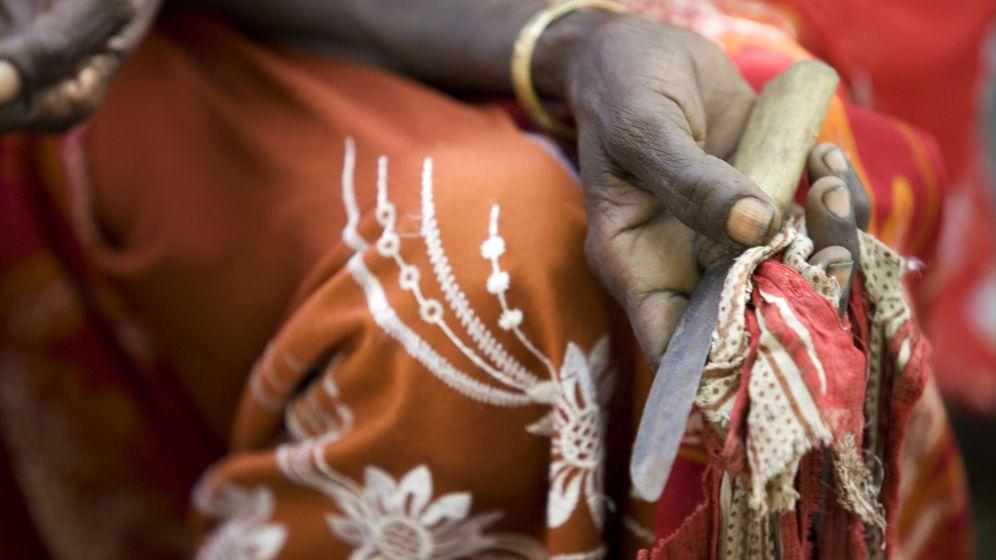 Foto: Una mujer que practicaba mutilaciones sostiene su herramienta en Deafar (Etiopía). (Foto: EFE/Unicef/Kate Holt)