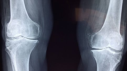 Trabajan en un dispositivo para acelerar la regeneración de huesos rotos