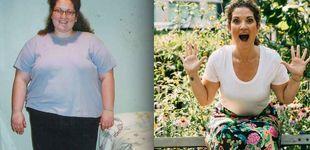 Post de Perdió 79 kilos cortando con el azúcar de golpe. Así fue como lo hizo