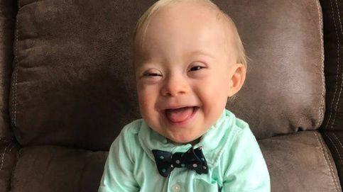 Lucas Warren, el primer niño con síndrome de Down imagen de la papilla infantil Gerber