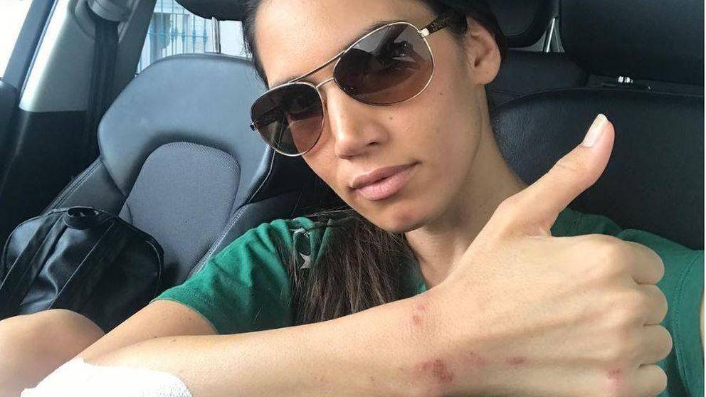 India Martínez, herida tras sufrir un atraco en la calle