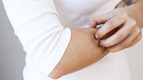 Nace una nueva 'relación': psoriasis y microbiota cutánea