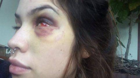 El cantante Tea Time, acusado de pegar palizas a su novia de forma reiterada