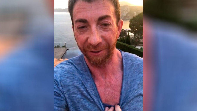 El impactante vídeo de Pablo Motos tras abrasarse al sol en vacaciones