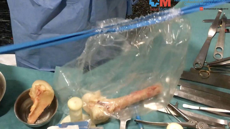 Orfebres del banco de huesos: así se talla la pelvis de un cadáver para mejorar una vida