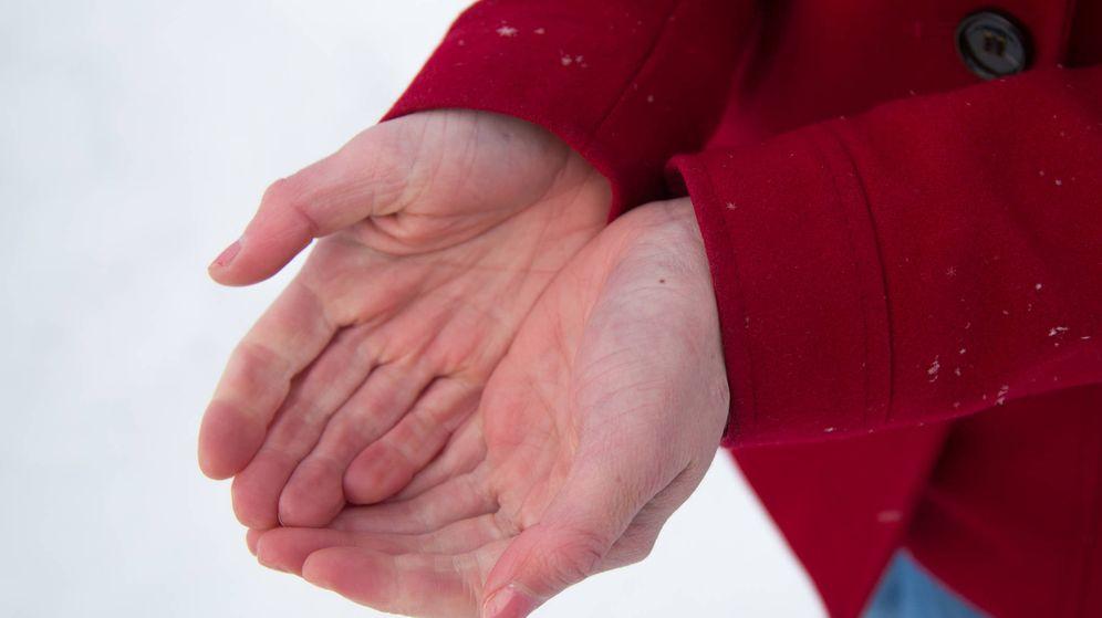 Foto: Manos con síndrome de Raynaud. (iStock)