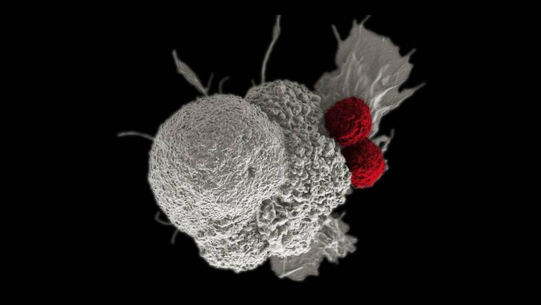 Dos células T atacando una célula cancerígena (NIH)