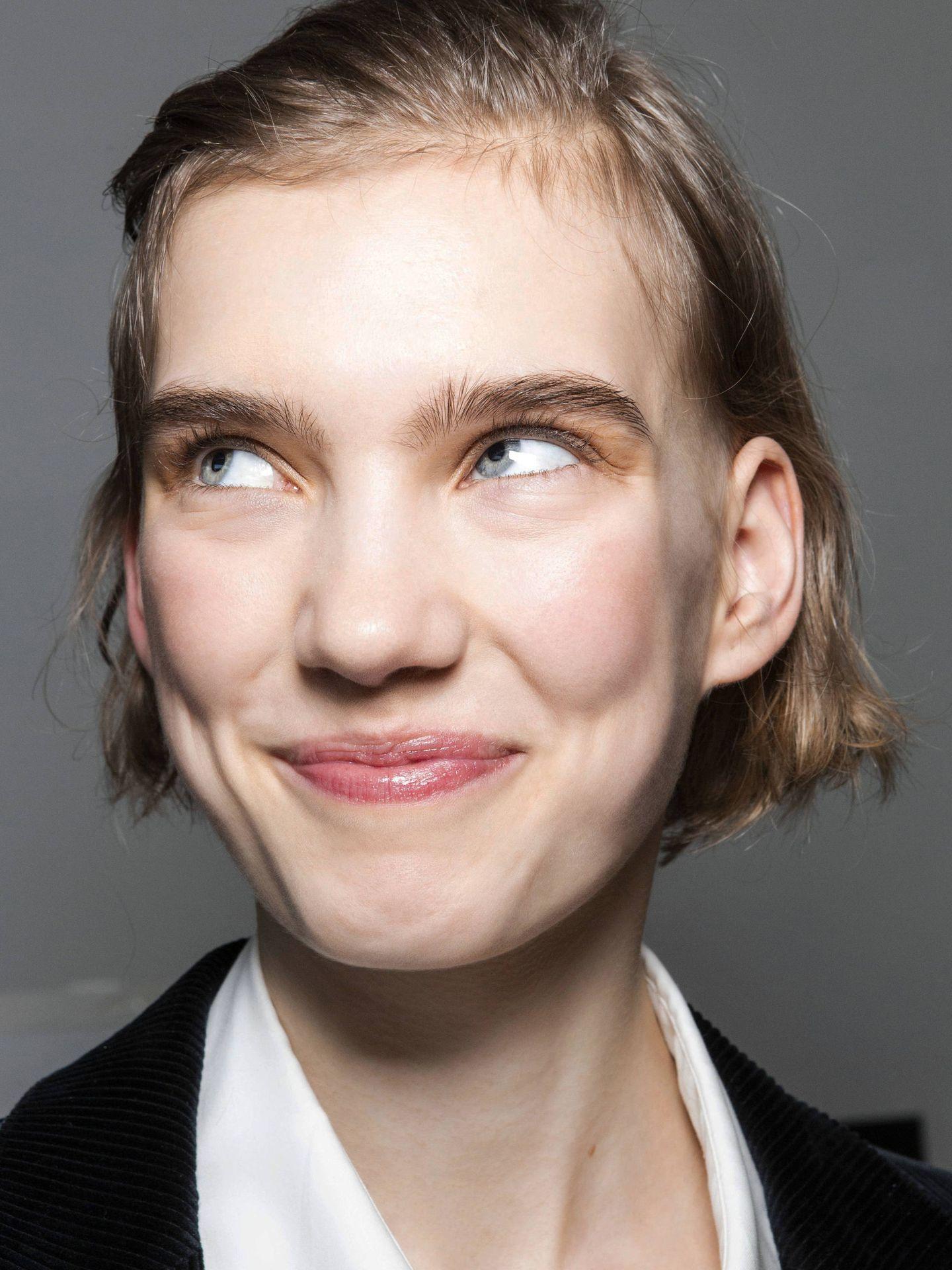 La hiperquinesia puede acelerar la aparición de las arrugas. (Imaxtree)