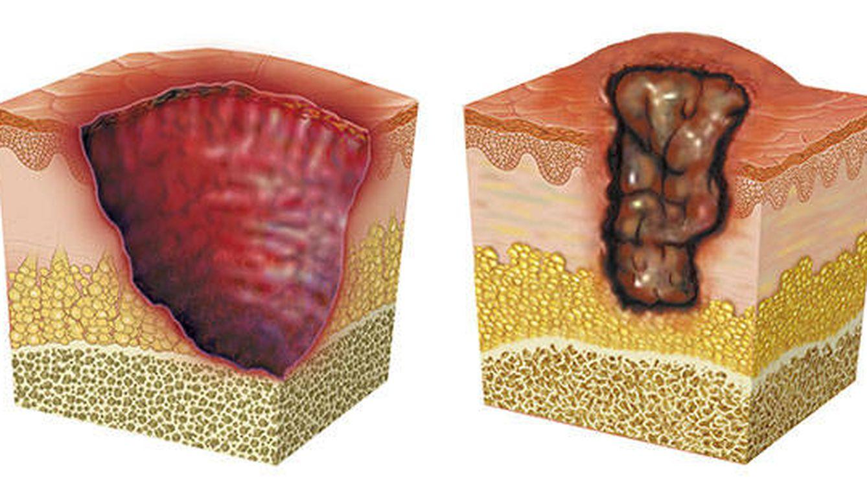 La úlcera de Buruli: una misteriosa bacteria que come carne humana