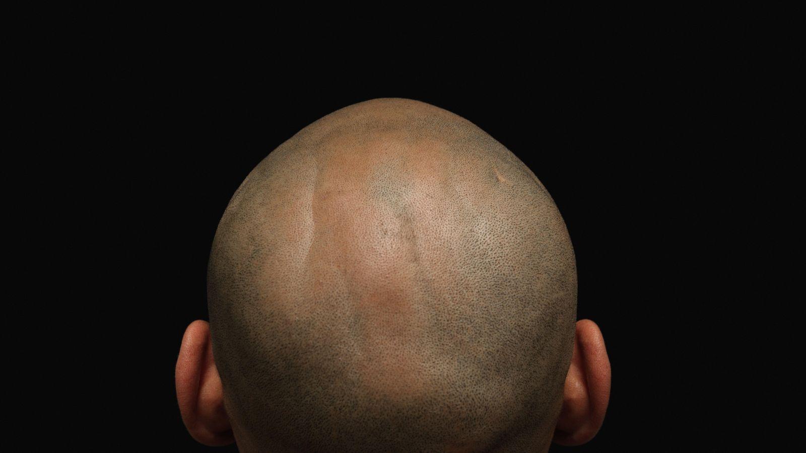 Foto: La alopecia también preocupa a las mujeres (Corbis)