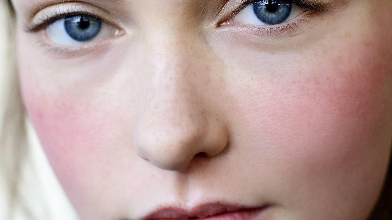 La protección solar es fundamental en el cuidado de una piel sensible y con acné. (Imaxtree)