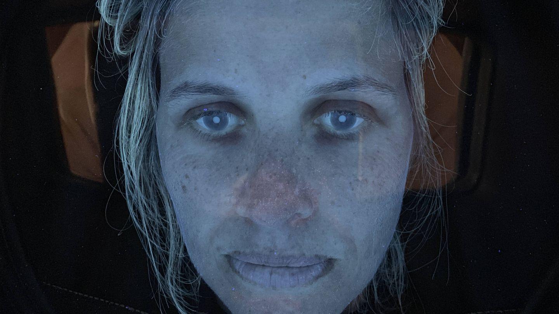 Foto tomada con una cámara de luz azul para ver las manchas de la piel. (Carmen Navarro)