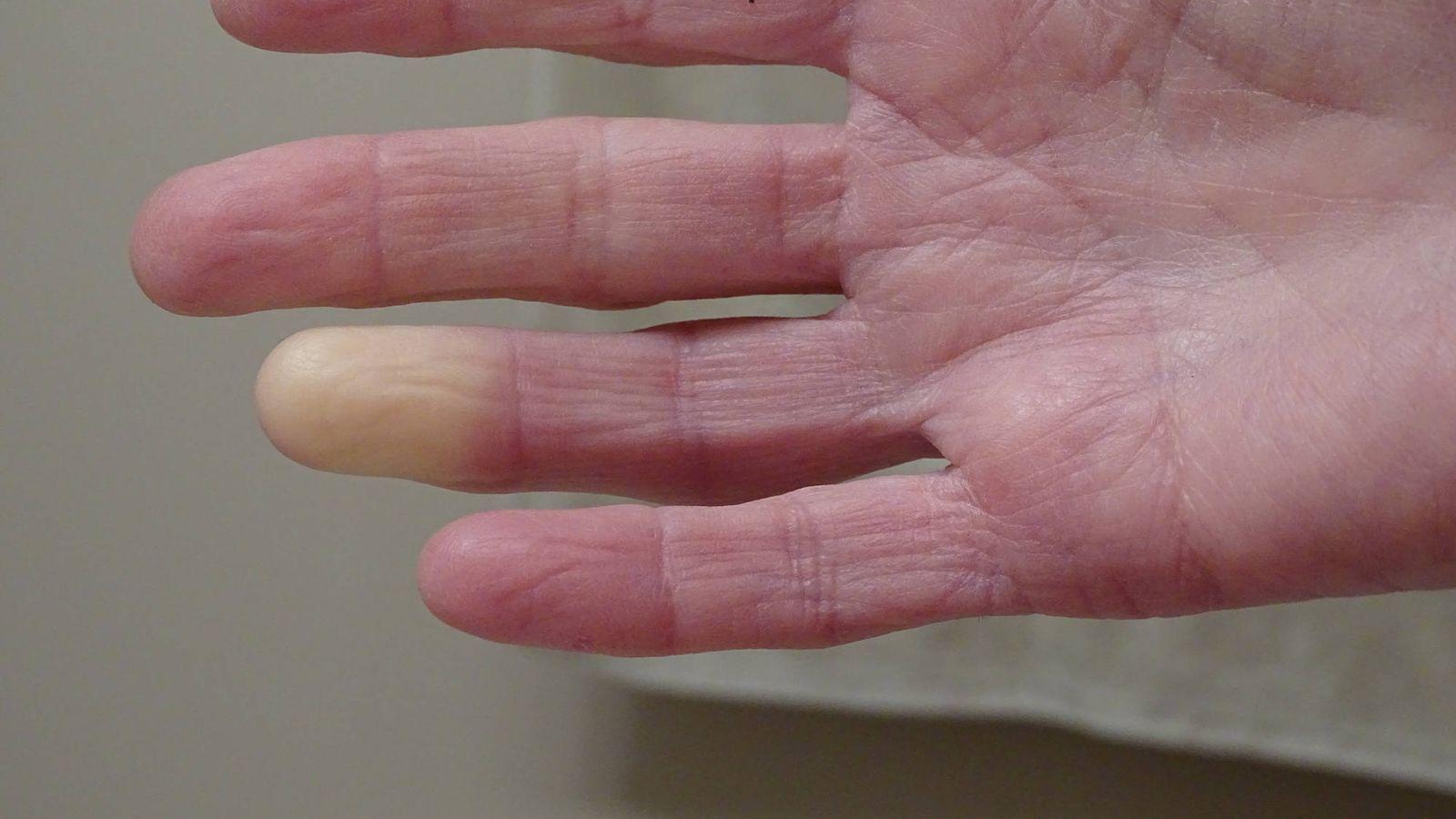 La esclerodermia es una enfermedad poco conocida. Cómo es la vida con ella.