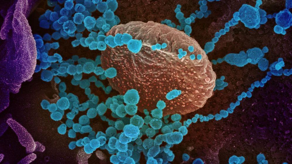 Foto: Una imagen de microscopio electrónico que muestra (objetos en azul) al SARS-CoV-2, el virus que causa el brote del Covid-19. (EFE)