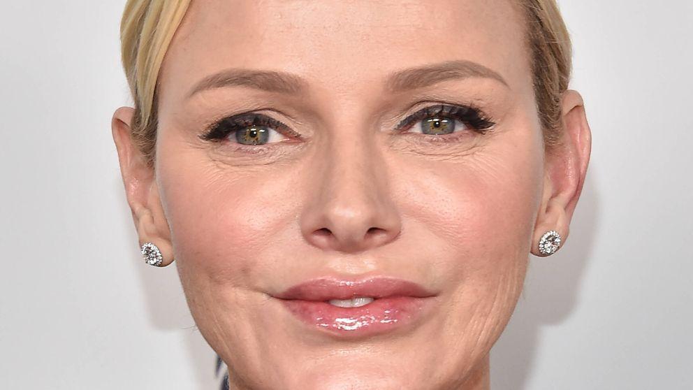 Charlène, ¿qué te ha pasado en la cara? El nuevo rostro de la princesa de Mónaco