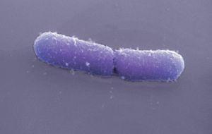 Encuentran en la comida una bacteria resistente a los antibióticos
