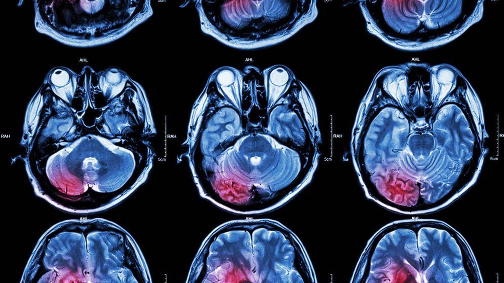 Foto: Resonancia magnética de un cerebro