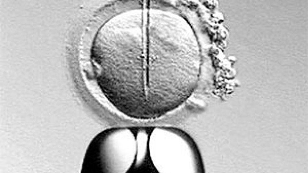El IVI investiga obtener ovocitos y espermatozoides de células madre