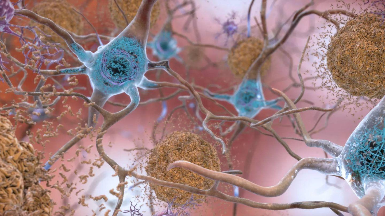 Placas de beta amiloide (NIA).