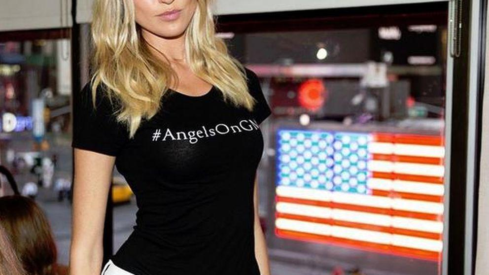 Martha Hunt, el ángel de Victoria's Secret que celebra sus cicatrices