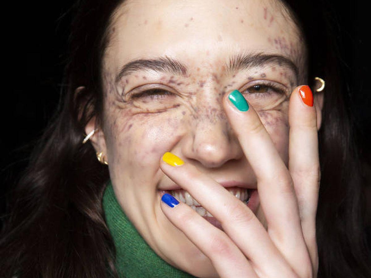 Foto: Sol, hormonas, acné, polución... Existen muchos factores que alteran la pigmentación. (Imaxtree)