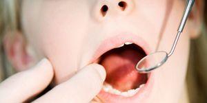 Foto: Comer cinco piezas de fruta podría dañar los dientes