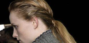 Post de El cuero cabelludo necesita atención: cuídalo dependiendo de si es seco o graso
