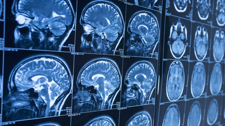 Un golpe en la cabeza puede aumentar el riesgo de Parkinson