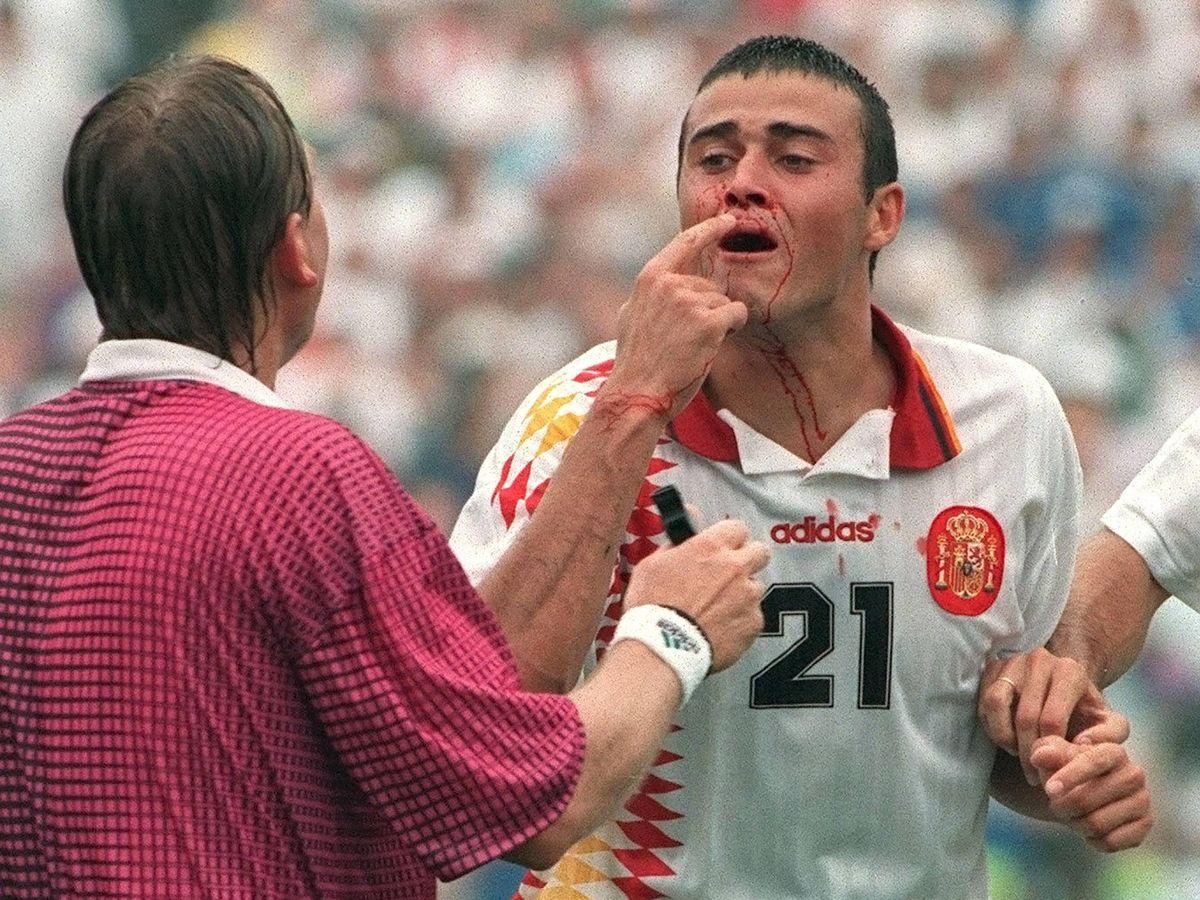 Foto: Luis Enrique, sangrando tras el codazo de Tasotti. (EFE)