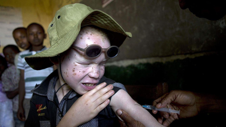 Foto: Un niño albino en vacunado del sarampión y la rubéola en Tanzania. (Efe)