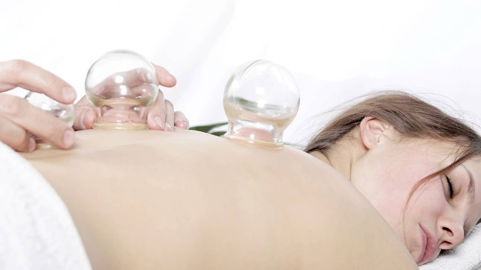 Cupping: la terapia que engancha a Gwyneth Paltrow o Jennifer Aniston