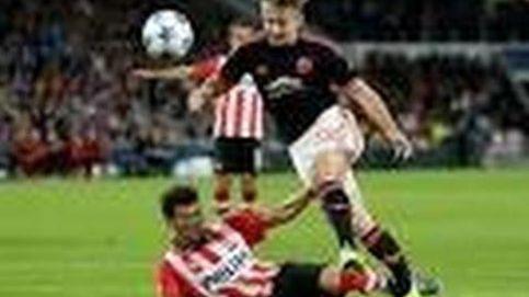 Así fue la grave lesión de Luke Shaw