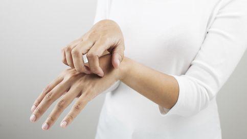 ¿El fin de los picores por dermatitis o eczemas? Hallan una proteína clave