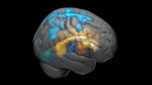 Fumar aumenta el riesgo de unas extrañas cicatrices blancas en el cerebro