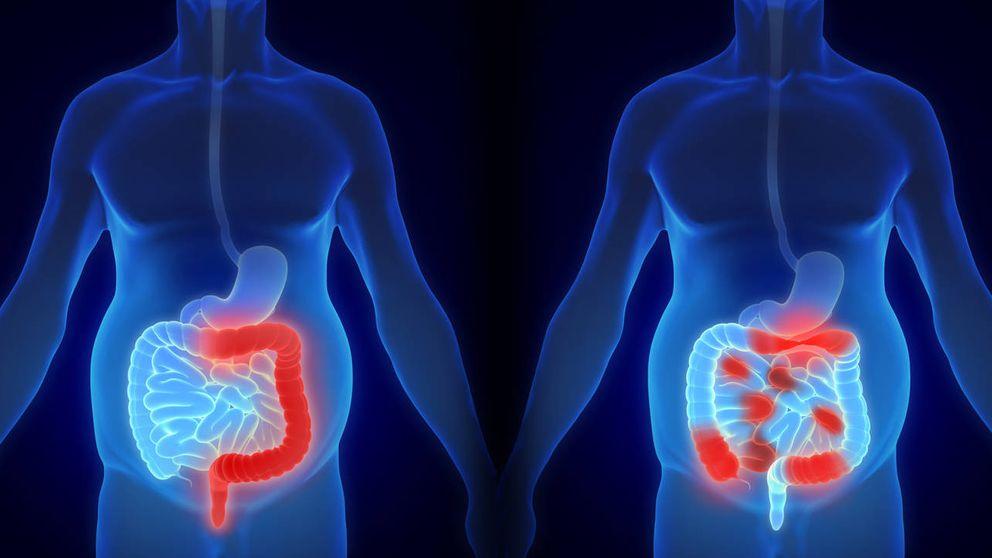 Qué hacer frente a las enfermedades inflamatorias intestinales, colitis y crohn