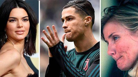 De Abascal a Ronaldo: por qué la ciencia aún no ha acabado con el acné... y sus cicatrices
