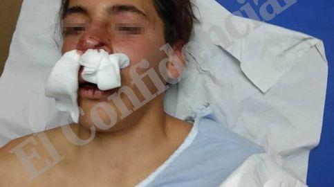 Expedientan a varios policías en Melilla por la brutal paliza a un musulmán de 17 años