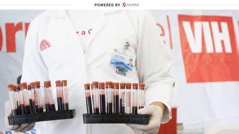¿Cómo ha afectado el covid-19 a la atención de los pacientes con VIH?