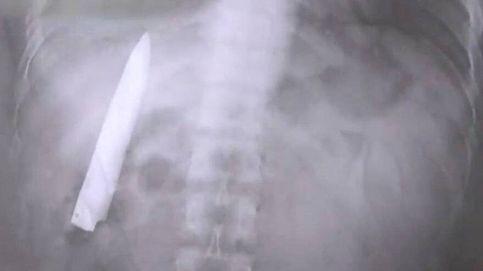 Le hacen radiografía y encuentran un cuchillo en el pecho que llevaba 1 año ahí