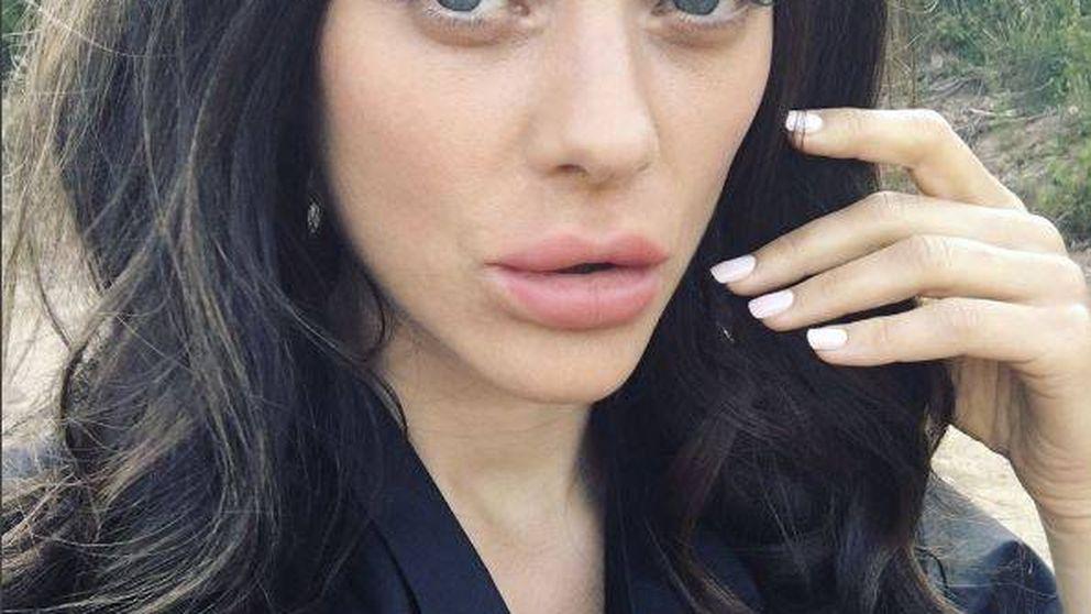 Los nuevos labios de Marion Cotillard… ¿qué se ha hecho?