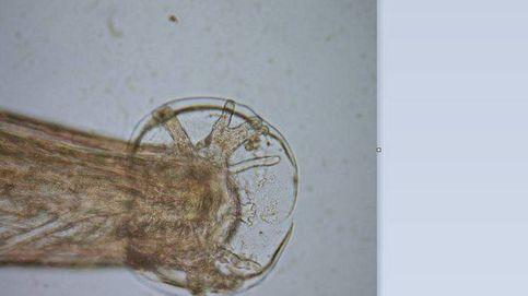 Detectan el 'gusano de los pulmones de rata', el único capaz de causar meningitis