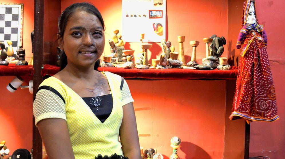Foto: Dolly, una de las chicas del 'Sheroes', restaurante regentado por mujeres víctimas de ataques con ácido. (EFE)