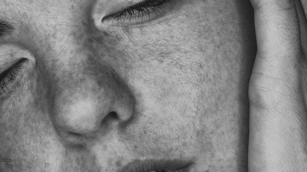 La culpa de tus arrugas es de tus padres y otros datos relevantes de una experta en piel