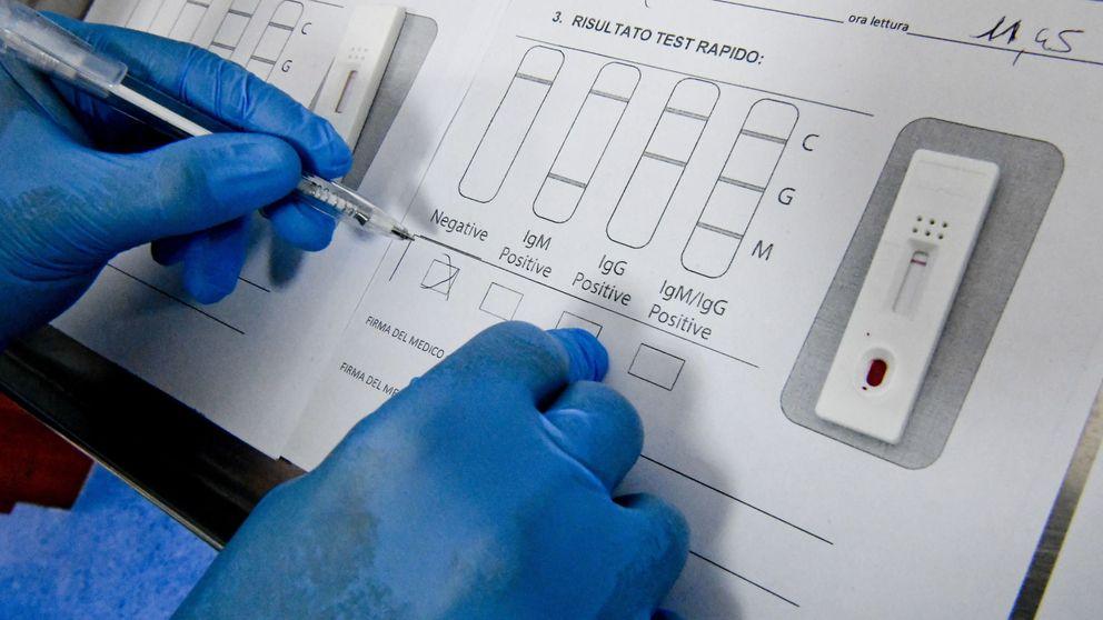 Sanidad adquirió unos test no pensados para el diagnóstico: solo aciertan un 50%