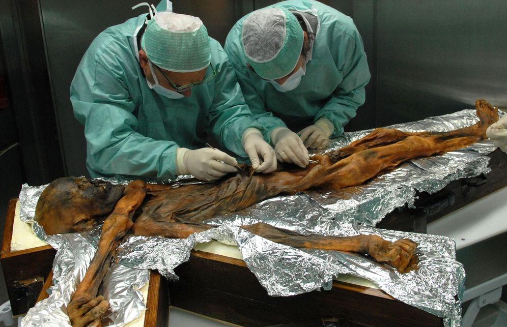 Foto: El cuerpo de Otzi cuenta con 61 tatuajes, algunos muy profundos en la piel. (EFE)