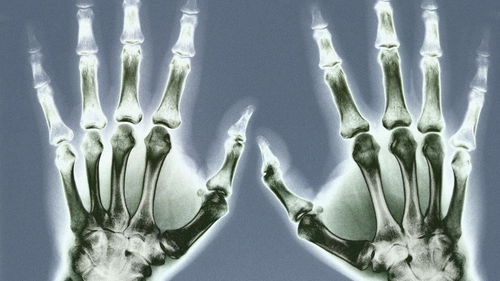 Cómo los huesos superan a los materiales artificiales más resistentes