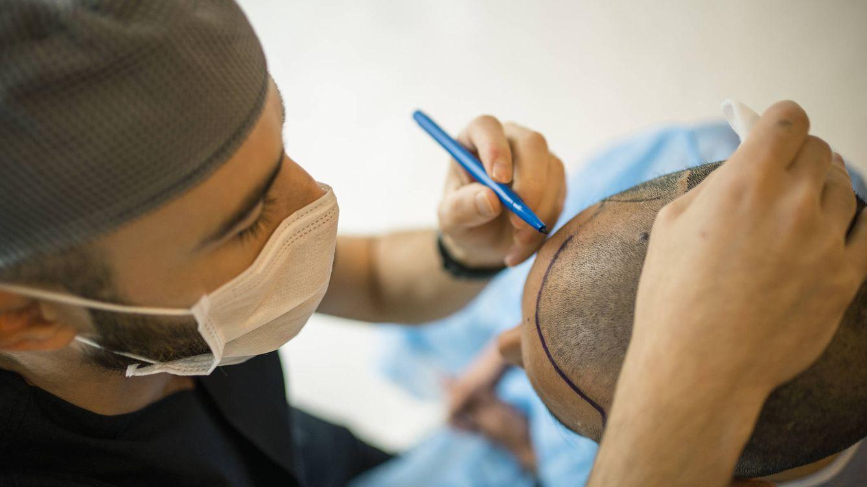 Ya no hace falta irse a Turquía: florecen en España las clínicas 'low cost' de injerto de pelo