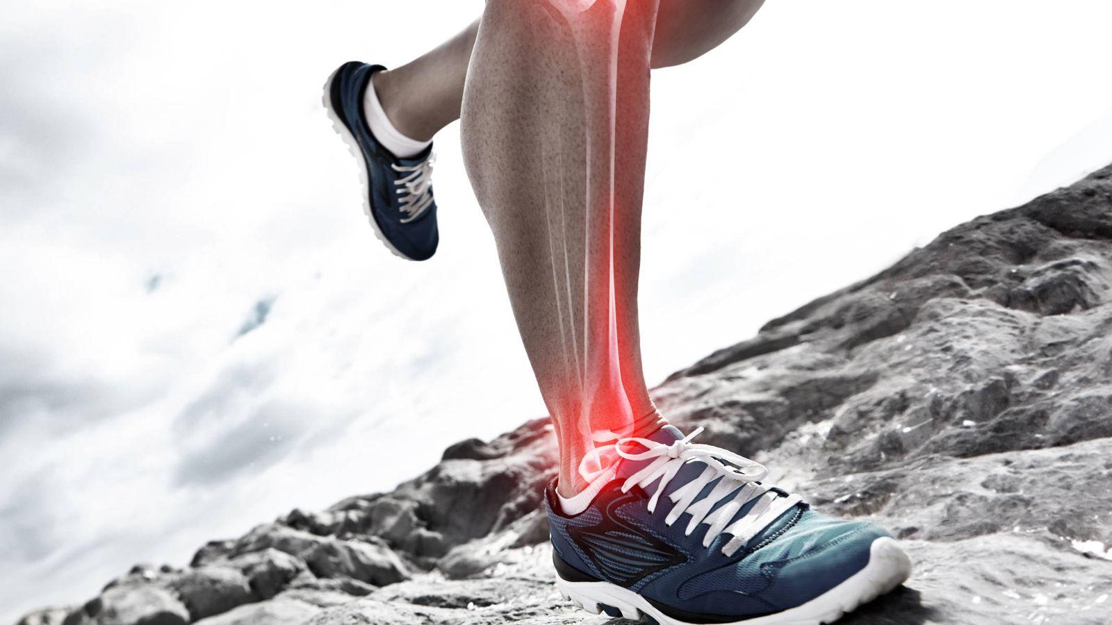Foto: Huesos sanos en un cuerpo sano. (iStock)